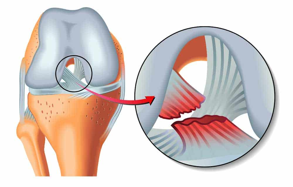 ACL Injury Diagram